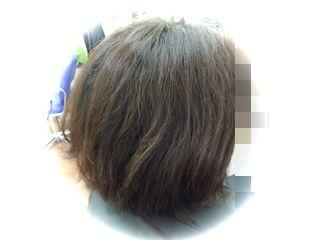 D様before2