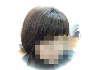 D様before3