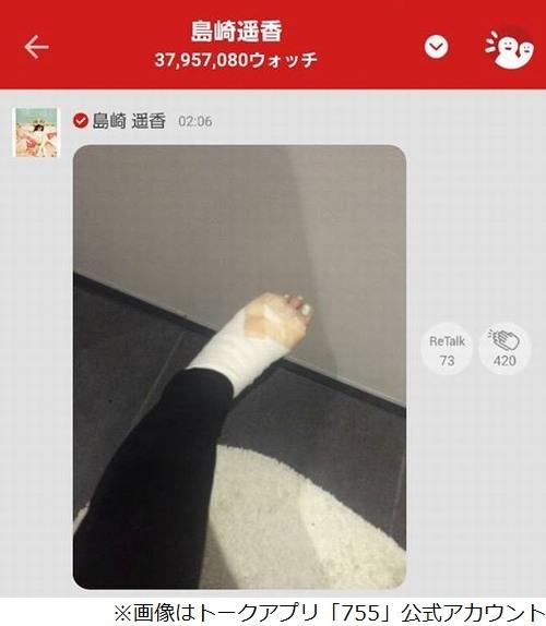 ぱるること島崎遥香が左足火傷で痛々しい姿 「歩くの痛くてもーめげないっ」