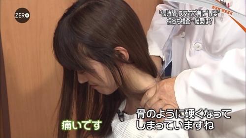 桐谷美玲 日テレ・NEWS ZERO「スマホ現代病」特集で受けた検診時の姿が話題に