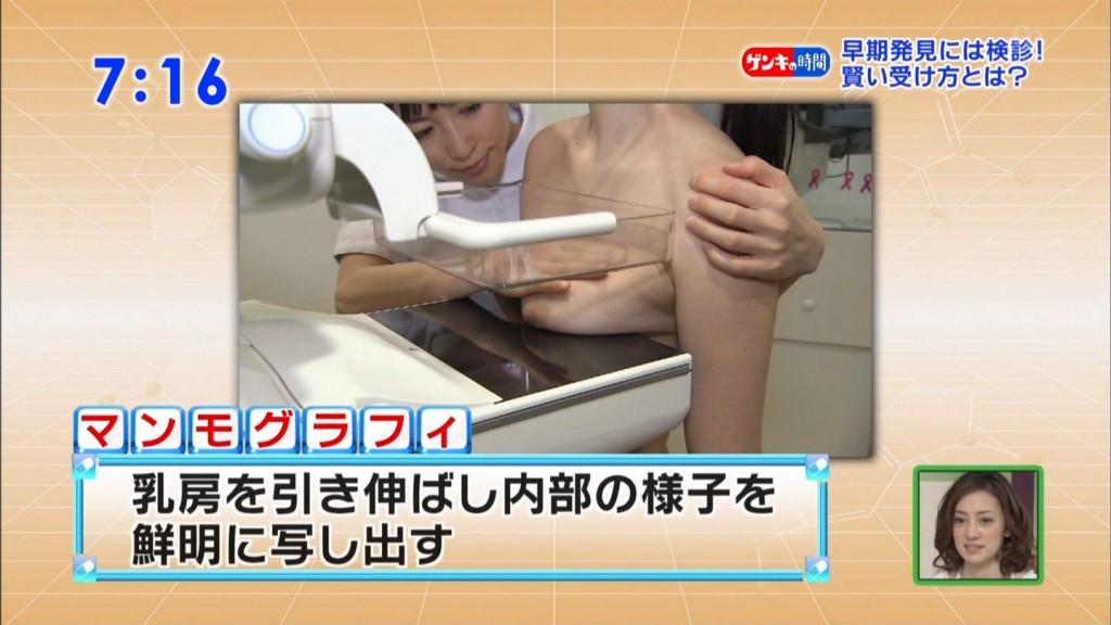 TBS「健康カプセル!ゲンキの時間」で乳がん検診、マンモグラフィ検査を受ける美少女の丸出しおっぱい