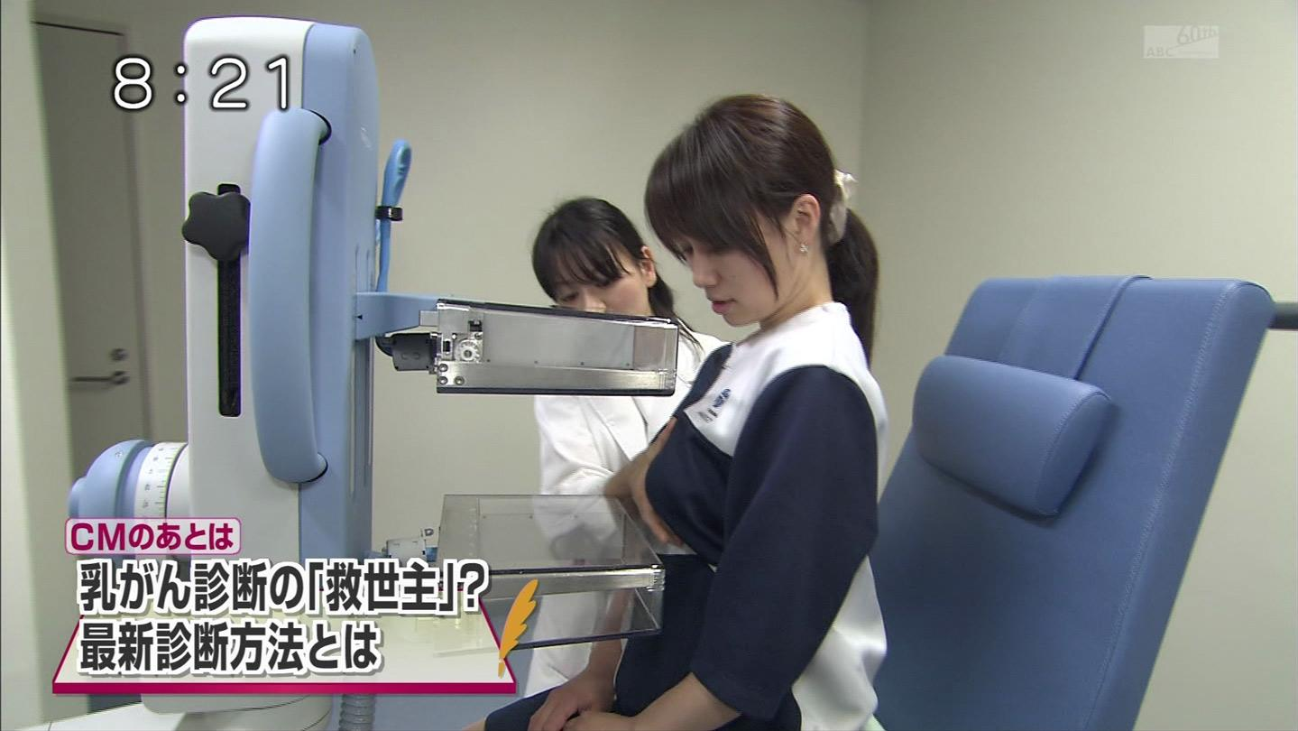 テレ朝「モーニングバード!」で乳がん検診、マンモグラフィ検査を受ける巨乳女子の着衣おっぱい