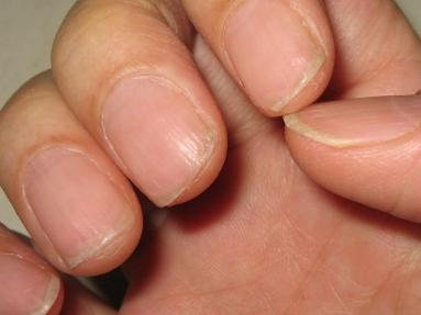 ボロボロの爪