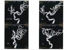 1. MRA 2008(h20.8.7 (No.1) 関東脳神経外科 220-164
