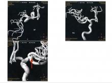 2. MRA 20.8.7 (No.2) 関東脳神経外科にて 3 220-164