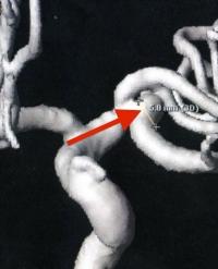 4 MRA 200807 (No.2) 関東脳神経外科にて 2 の拡大 200-250
