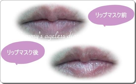 アイムピンチ リップマスク 唇1