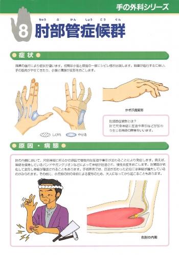 肘部管症候群 表0001