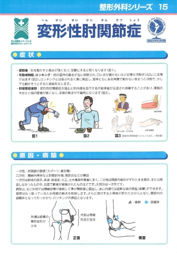 変形性肘関節症 表0001