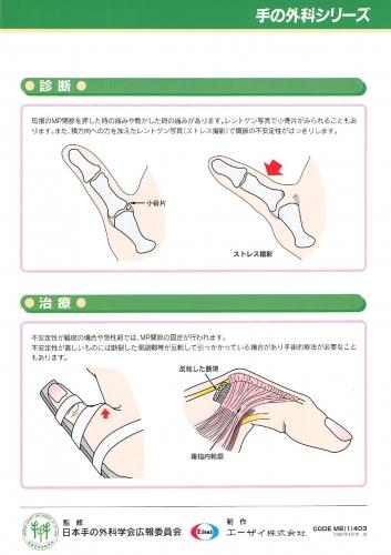 母指MP関節靭帯損傷 裏0001