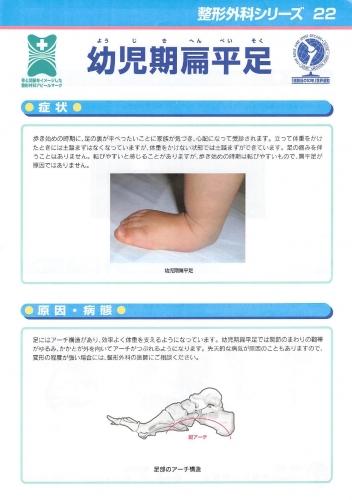幼児期扁平足 表0001