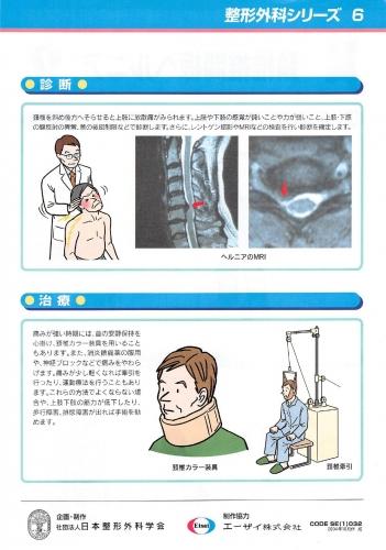 頸椎椎間板ヘルニア 裏0001