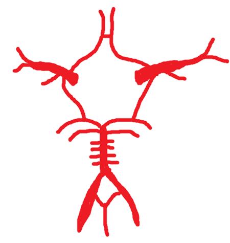 ウィリスの動脈輪