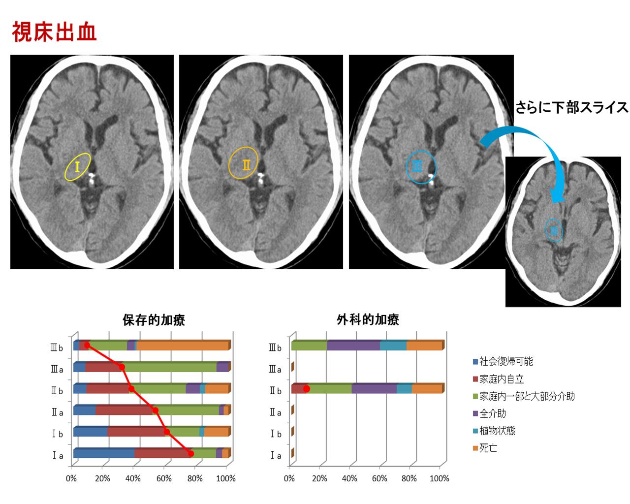 CT分類視床出血