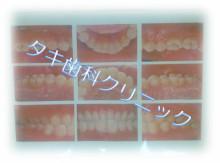 神奈川県小田原市 タキ歯科クリニックBlog-口腔内写真