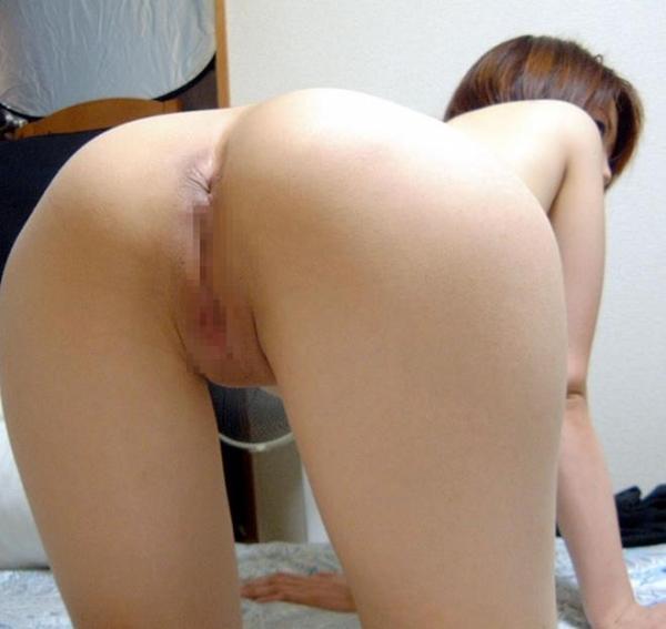 肛門画像 25